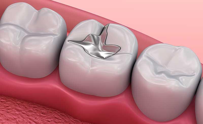 Amalgamsanierung Zahnarzt Konstanz