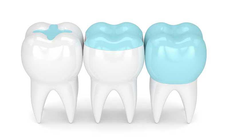 Amalgamentfernung Zahnarzt Konstanz