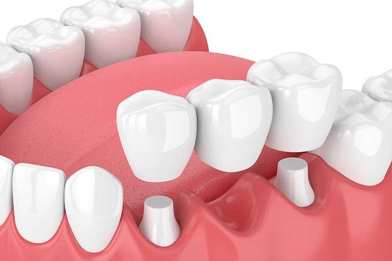 Zahnimplantat keramik